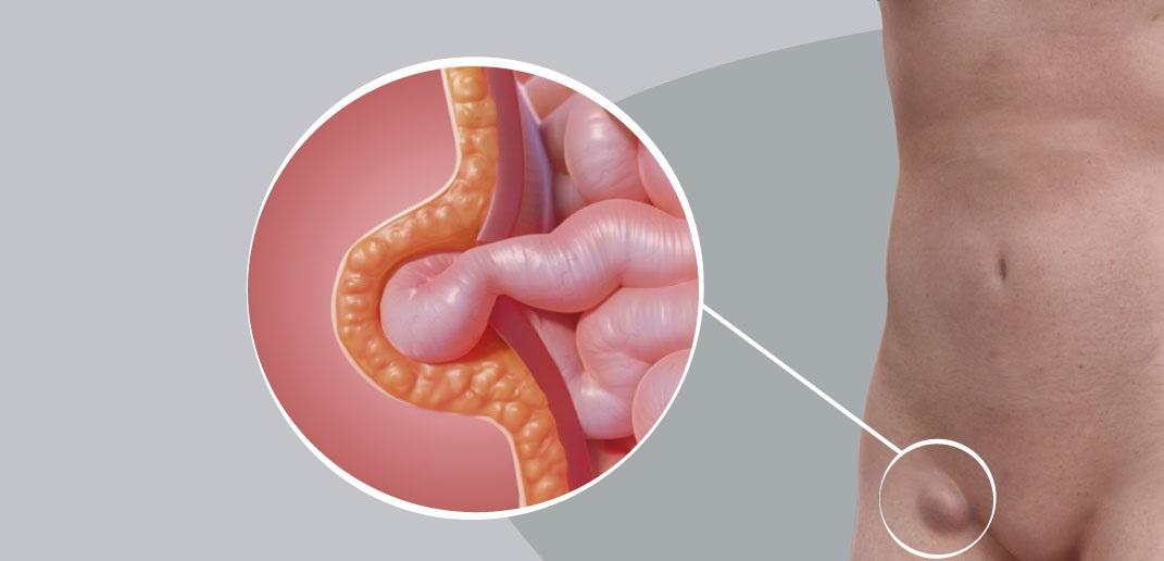 Ilustração de uma hérnia na virilha