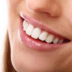 Dentes brancos: conheça os tratamentos para deixar seu sorriso mais bonito